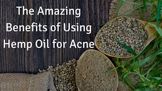The Amazing Benefits of Using Hemp Oil for Acne
